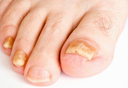 Грибок на пальцах лечение экзодерилом