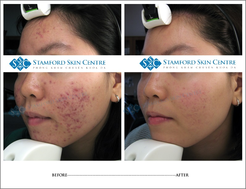 BEFORE AND AFTER-ACNE TREATMENT