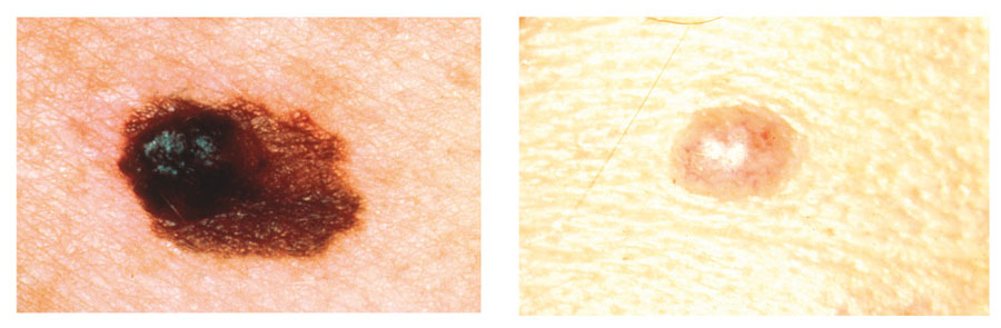 Early Skin Cancer Moles Skin Cancer, Melanoma ...