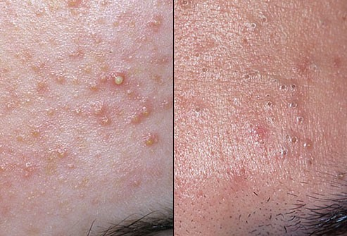 Are there any effective natural acne treatment options?