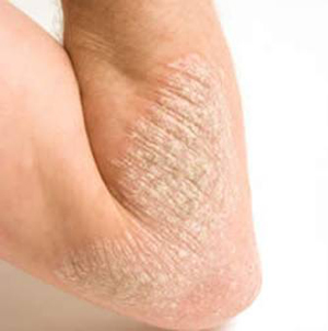 di-ung-eczema-lon-vn-1