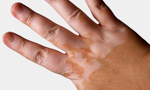 VITILIGO AND LOSS OF SKIN COLOR