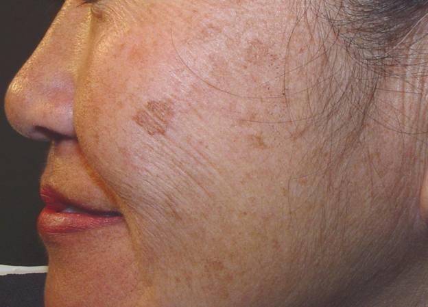 Phương pháp điều trị sẹo mụn