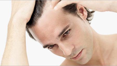 Hói đầu và cách chữa trị hiệu quả nhất