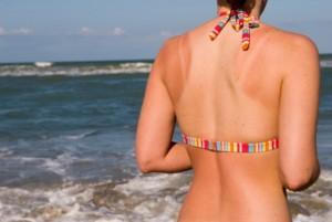 08-15-12-sunburn-skin