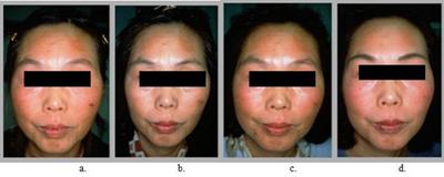 Vitamin-C-Iontophoresis-vn-8