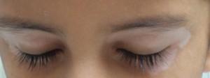 vitiligo-on-eyes